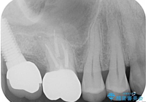 感染した奥歯 痛くて咬めない 根管治療→かぶせ物で痛みを取り除き、かみ合わせを回復するの治療中