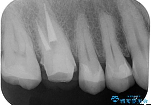 金属だらけの奥歯 根管治療のやり直しとセラミック化の治療中