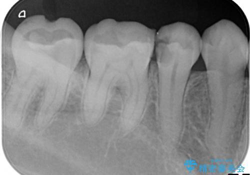 虫歯の治療 セラミックの詰め物で綺麗にの治療前