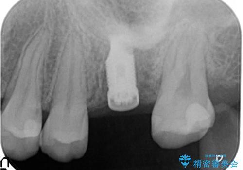 奥歯が割れてしまった! → インプラントによるかみ合わせの回復の治療中