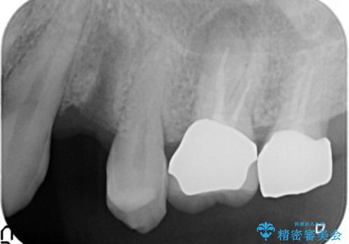 歯がわれた 抜歯してインプラント 50代男性の治療前