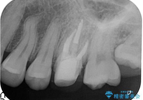 金属の奥歯 → 白い奥歯 根管治療からのやり直しの治療中