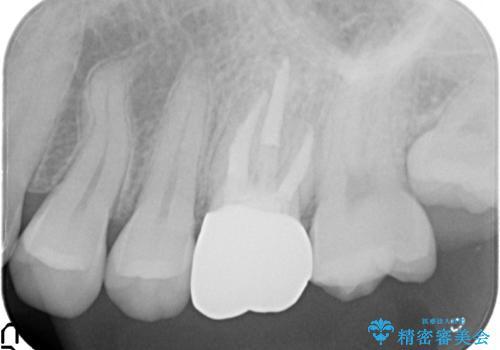 金属の奥歯 → 白い奥歯 根管治療からのやり直しの治療後
