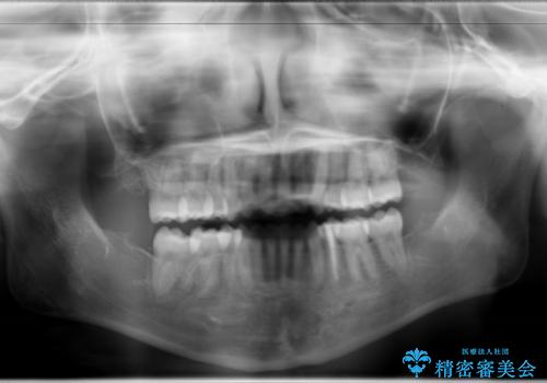 ハーフリンガル 半分裏側矯正による上下前突の抜歯矯正治療の治療後