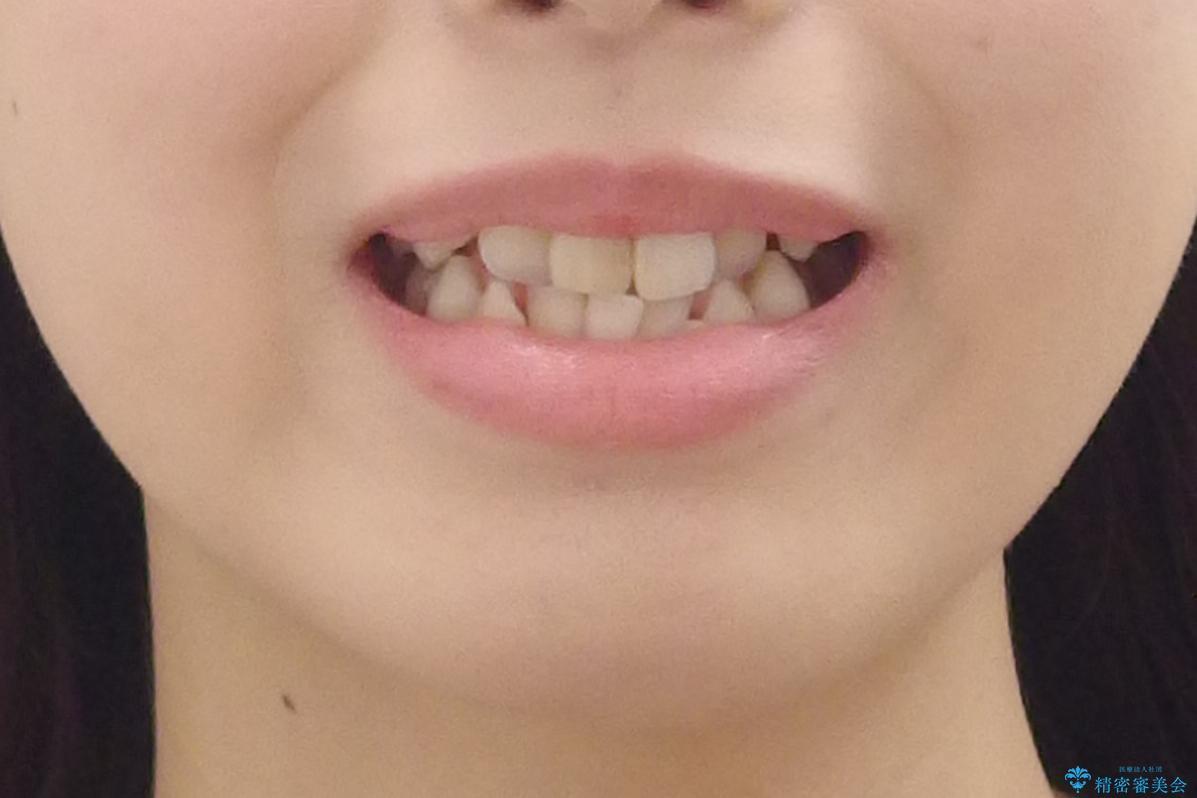 八重歯 前歯のがたがた 抜歯してワイヤー矯正の治療前(顔貌)