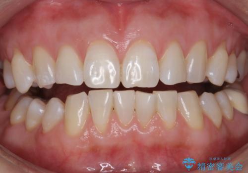 エクセレントホワイトニングで白くてきれいな歯に。の症例 治療後