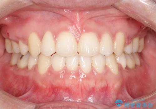 口元出てるのが気になる ワイヤーでの抜歯矯正で口元をすっきりとの症例 治療後