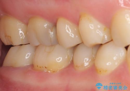 奥歯のクラウン周りが腫れる 精密治療による腫脹の改善の治療後