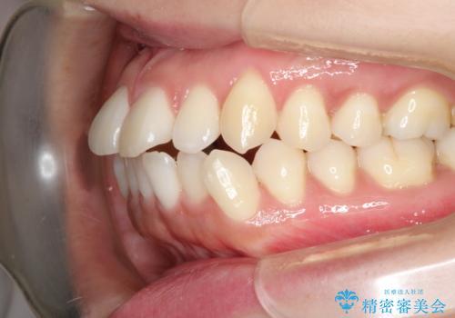 口元出てるのが気になる ワイヤーでの抜歯矯正で口元をすっきりとの治療前