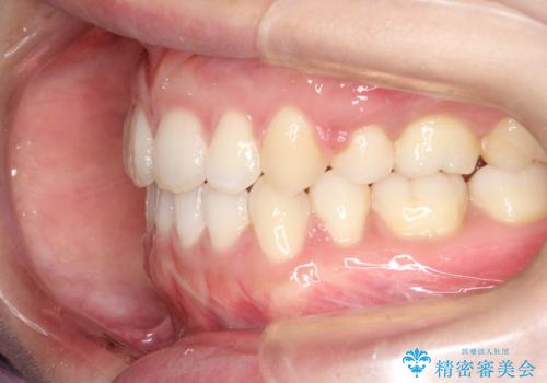 口元出てるのが気になる ワイヤーでの抜歯矯正で口元をすっきりとの治療後