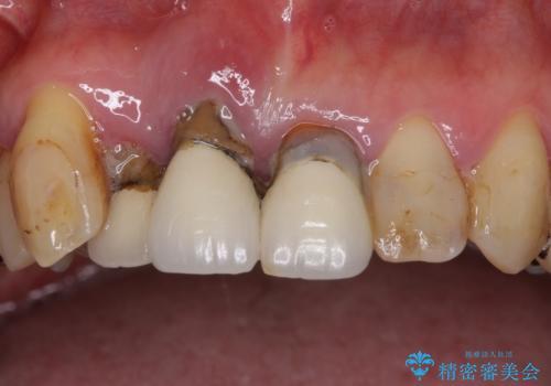矯正を併用した前歯のセラミックブリッジ治療の治療前