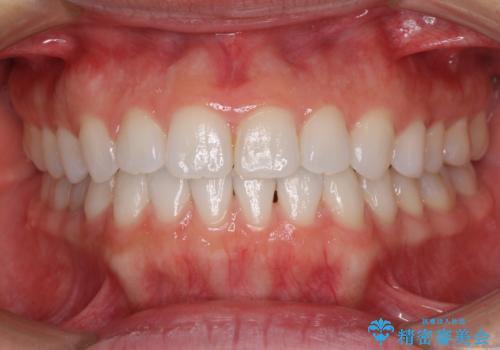 反対咬合を治したい インビザラインによる矯正治療の症例 治療後