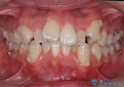八重歯 抜かずにマウスピース矯正治療の治療中