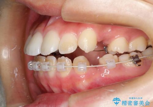 ハーフリンガル 半分裏側矯正による上下前突の抜歯矯正治療の治療中