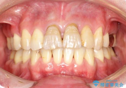 変色した前歯をセラミックできれいに レイヤリングセラミックの治療前