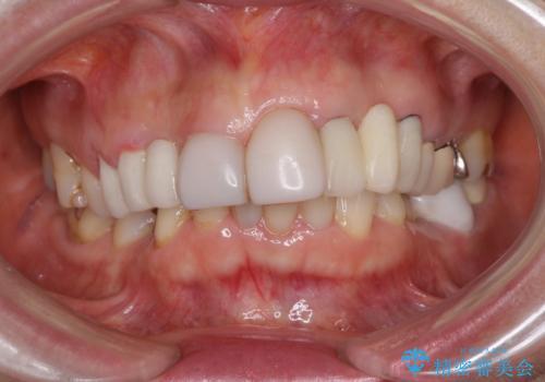 前歯ブリッジの症例 治療前