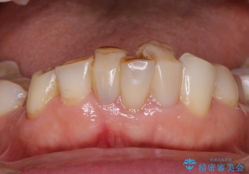 前歯をきれいに 部分矯正とオールセラミッククラウンの治療前