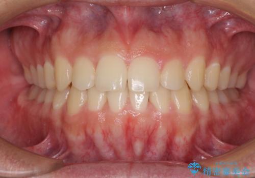前歯のデコボコをワイヤー矯正で速やかに改善の症例 治療後