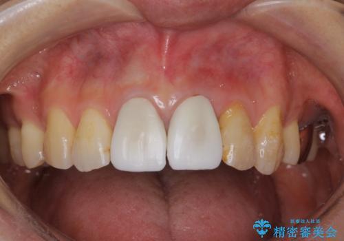 変色した前歯をセラミックできれいに レイヤリングセラミックの治療中