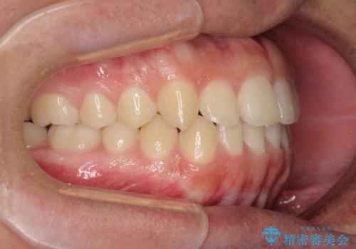 前歯のデコボコをワイヤー矯正で速やかに改善の治療後