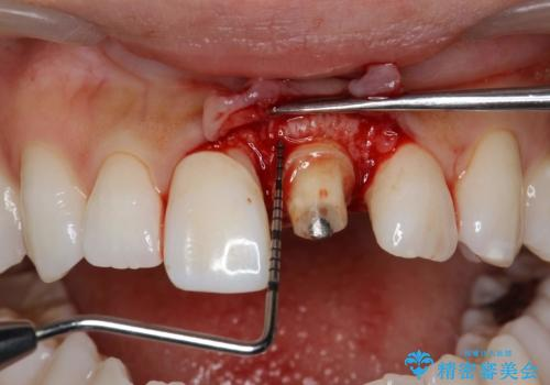 前歯の長さをそろえる 歯周外科とセラミックの治療中