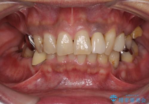 歯周ポケットの除去の症例 治療前