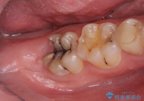 オールセラミッククラウン 歯肉より深い虫歯の治療の治療前