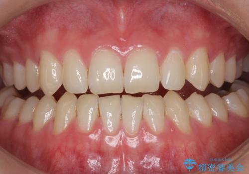 モチベーションの上がる白い歯にの症例 治療前