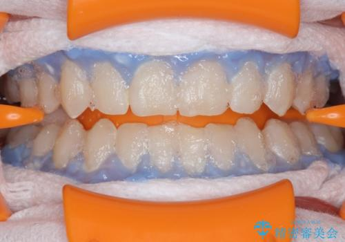 モチベーションの上がる白い歯にの治療中