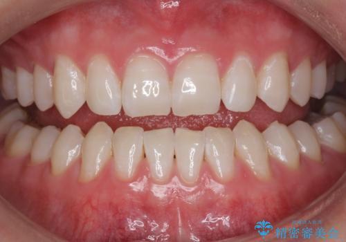 モチベーションの上がる白い歯にの症例 治療後