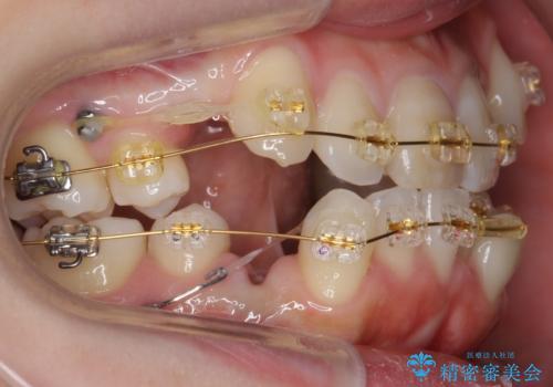 八重歯 前歯のがたがた 抜歯してワイヤー矯正の治療中