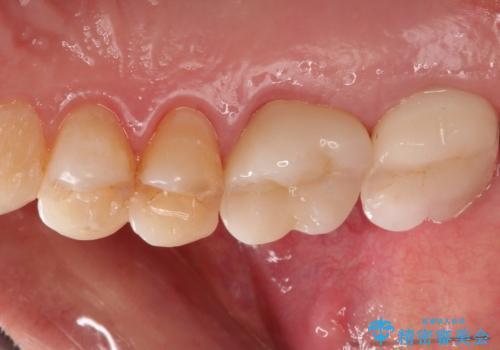 感染した奥歯 痛くて咬めない 根管治療→かぶせ物で痛みを取り除き、かみ合わせを回復するの治療後
