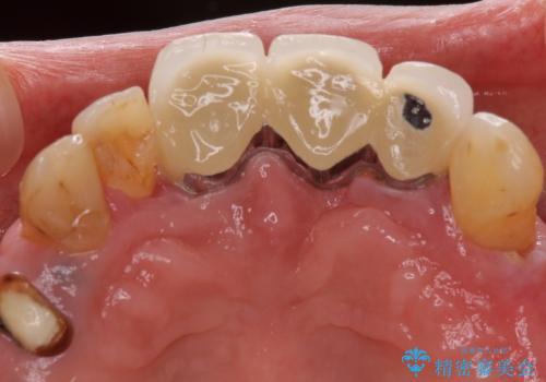 インプラントと入れ歯による全顎補綴治療の治療前
