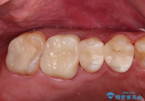 金属だらけの奥歯 根管治療のやり直しとセラミック化の治療後