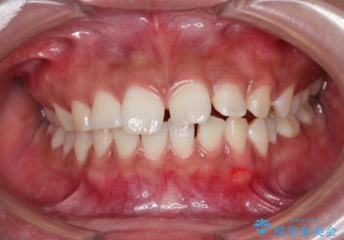 気になる出っ歯とすきっ歯を<span class=