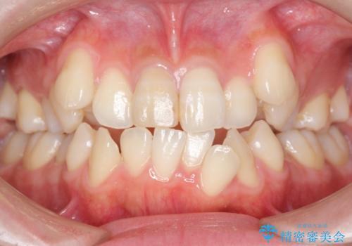 八重歯 前歯のがたがた 抜歯してワイヤー矯正の症例 治療前