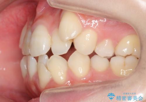八重歯 前歯のがたがた 抜歯してワイヤー矯正の治療前