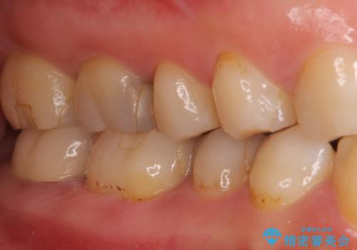 奥歯のクラウン周りが腫れる 精密治療による腫脹の改善の治療前