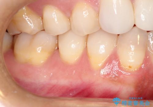 下がってしまった歯肉を元に戻したいが、自分の歯ぐきを移植するのは気が進まない : バイオマテリアルを応用した歯肉退縮への手術的対応の症例 治療前