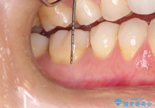 下がってしまった歯肉を元に戻したいが、自分の歯ぐきを移植するのは気が進まない : バイオマテリアルを応用した歯肉退縮への手術的対応の治療前