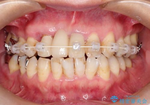 矯正を併用した前歯のセラミックブリッジ治療の治療中