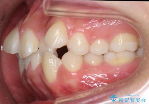 八重歯 抜かずにマウスピース矯正治療の治療前