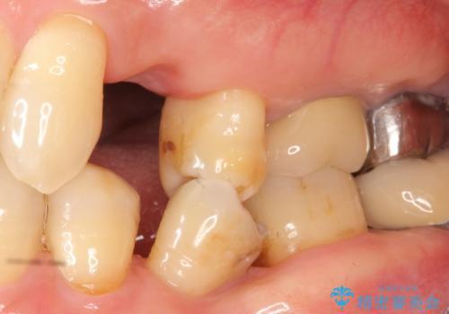 歯がわれた 抜歯してインプラント 50代男性の症例 治療前