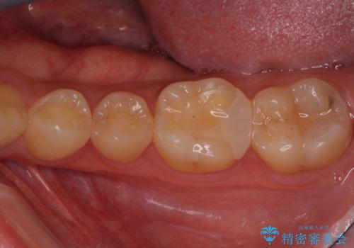 精密な虫歯治療希望で転院の症例 治療前