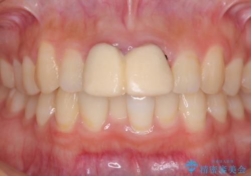 仮歯が汚くて恥ずかしい 前歯のオールセラミッククラウンの治療前