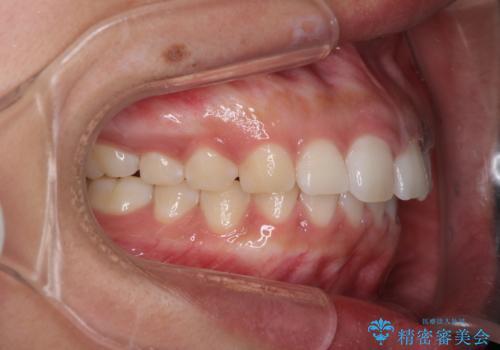 気になる出っ歯とすきっ歯をインビザラインで改善の治療中