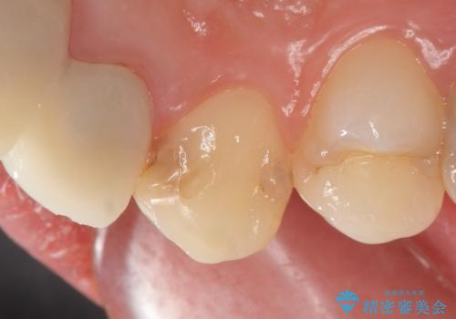 オールセラミッククラウン 前歯を綺麗にの治療前