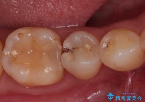 虫歯の治療 セラミックの詰め物で綺麗にの症例 治療前