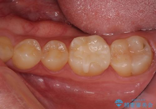 精密な虫歯治療希望で転院の症例 治療後