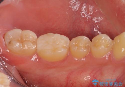 精密な虫歯治療希望で転院の治療後